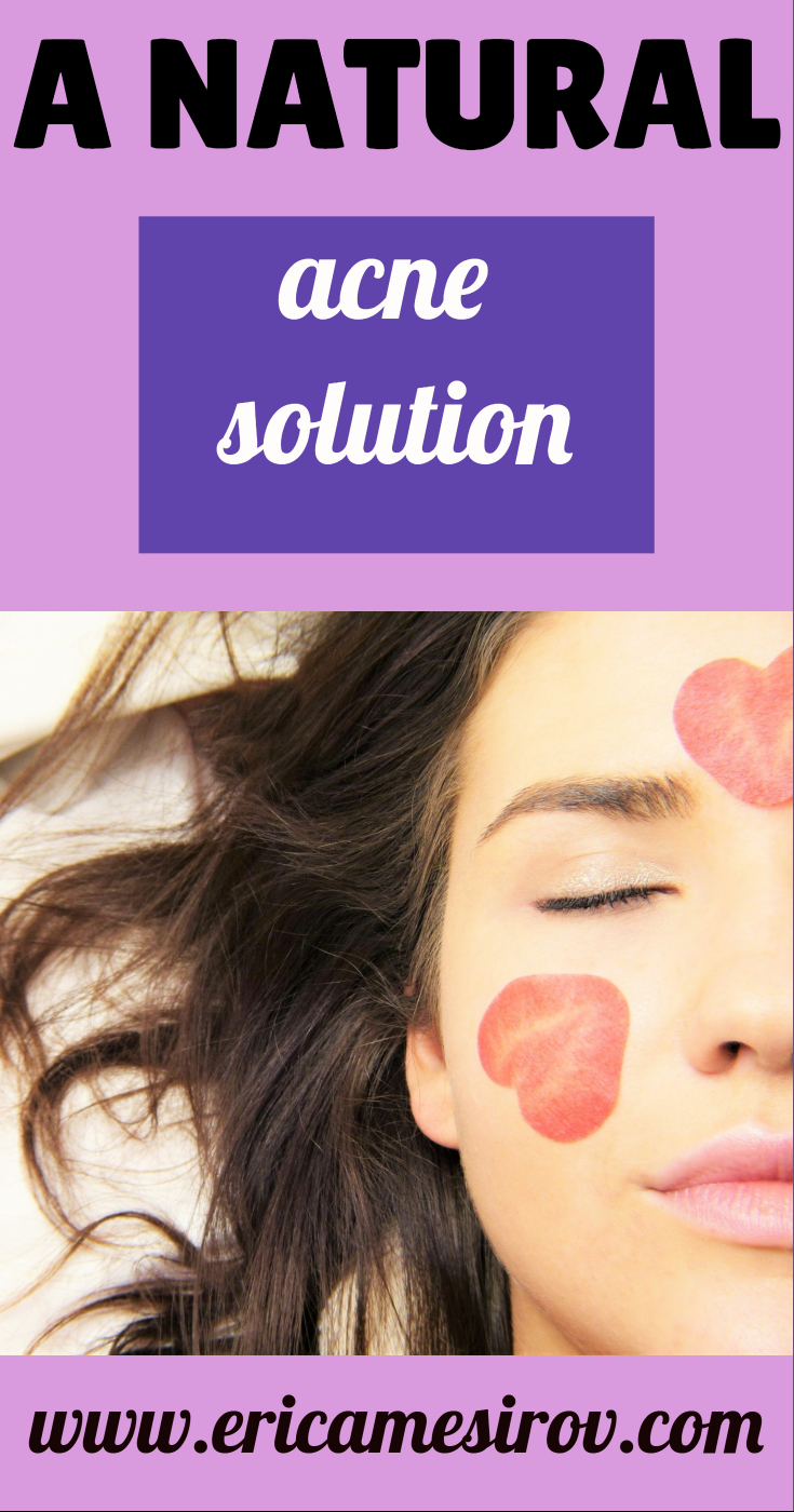 A natural acne solution (food sensitivities and pimples/ natural acne remedy/ drugs for acne/ creams for pimples/ creams for breakouts/ what to use when you break out/ foods that cause acne/ why your skin is still breaking out/ sugar and pimples)